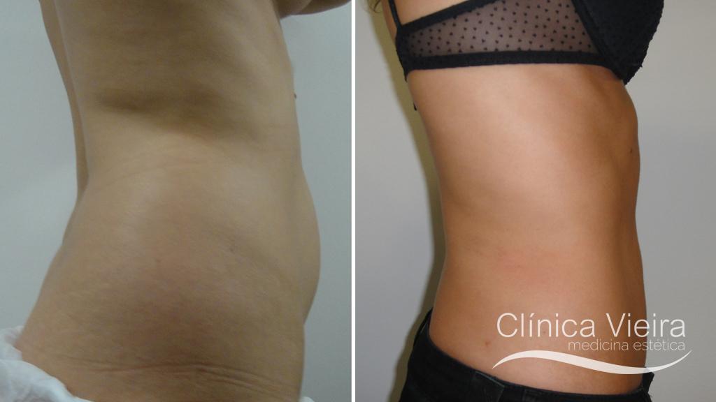 Lipo abdomen 1
