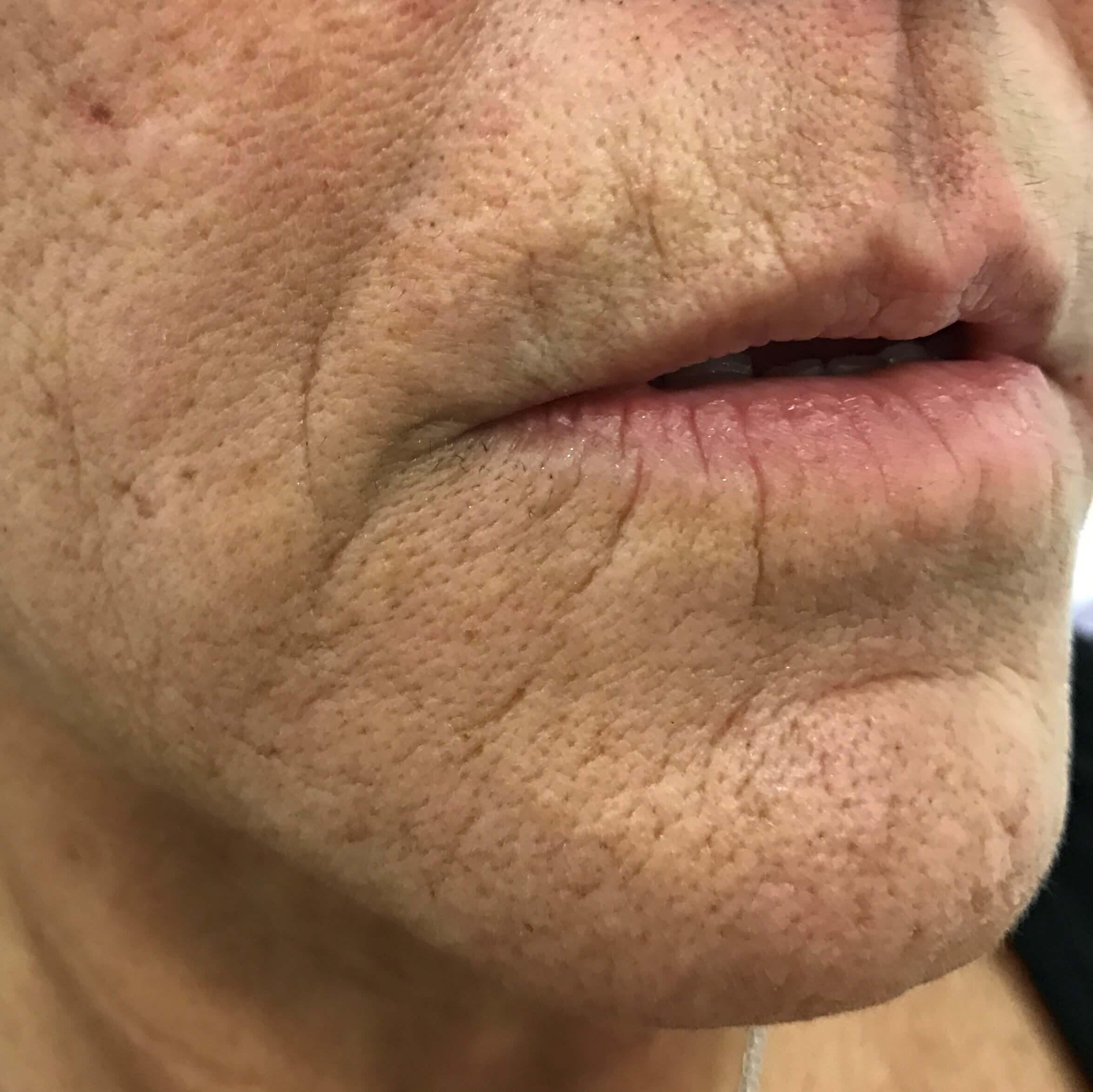 Medicina Estética para Eliminar Arrugas en los Labios.