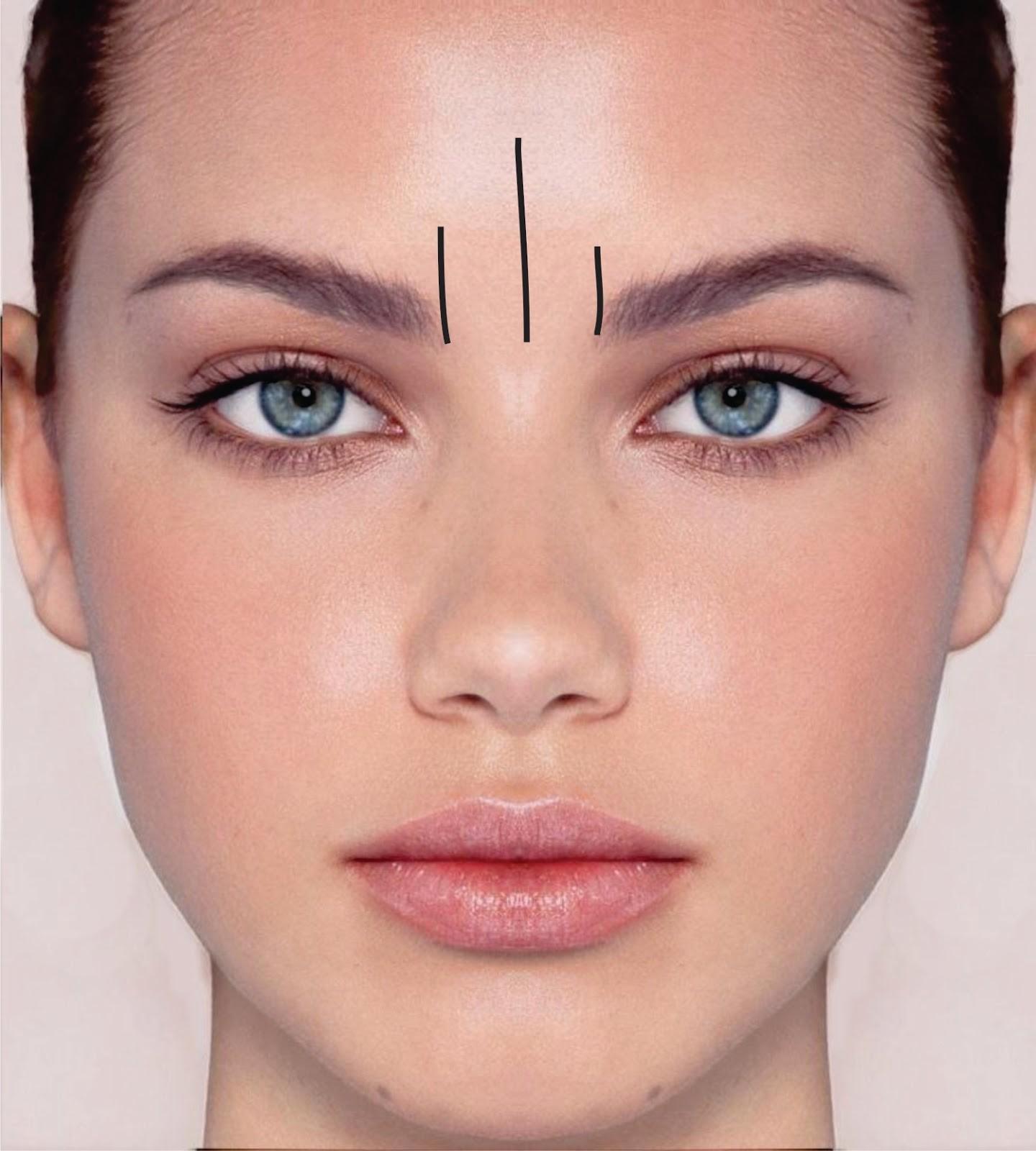 Tratamientos para Eliminar Arrugas del Entrecejo.