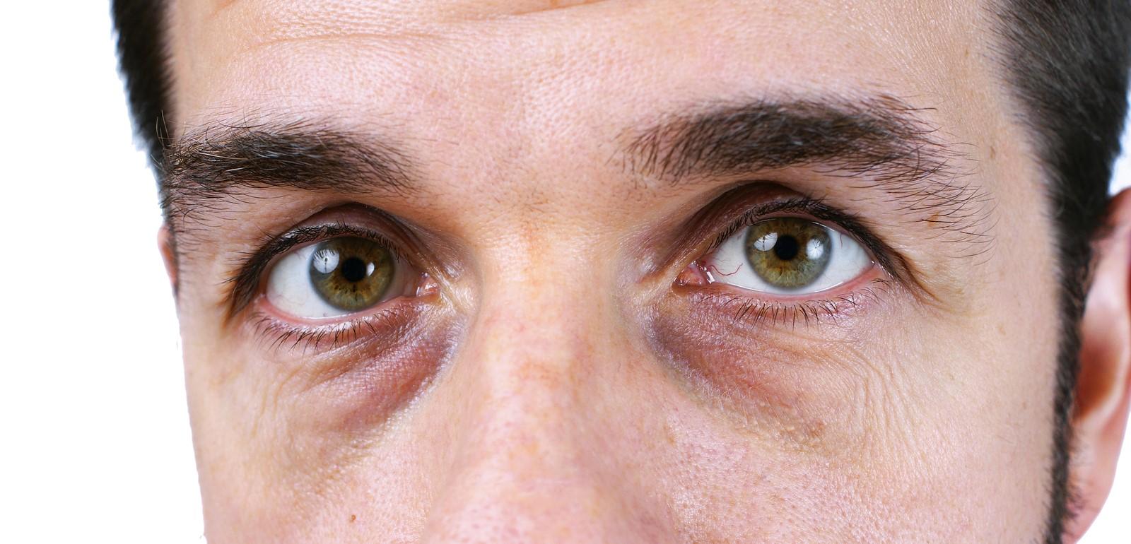 Un nuevo tratamiento para eliminar las Ojeras