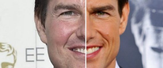 Tom Cruise y la medicina estética