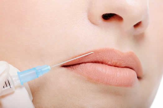 Cómo aumentar los labios sin cirugía estética