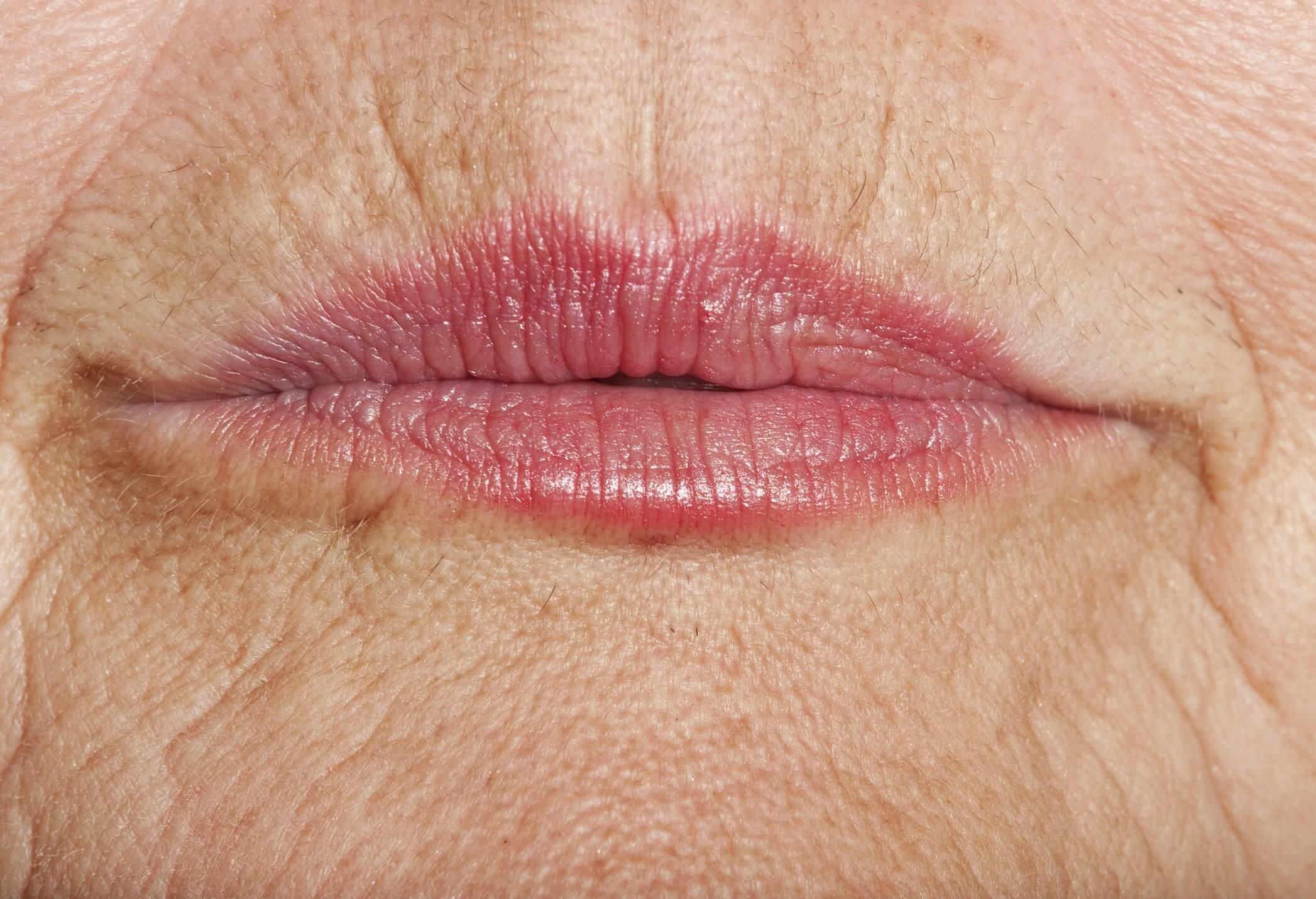 Arrugas en los Labios - Código de Barras