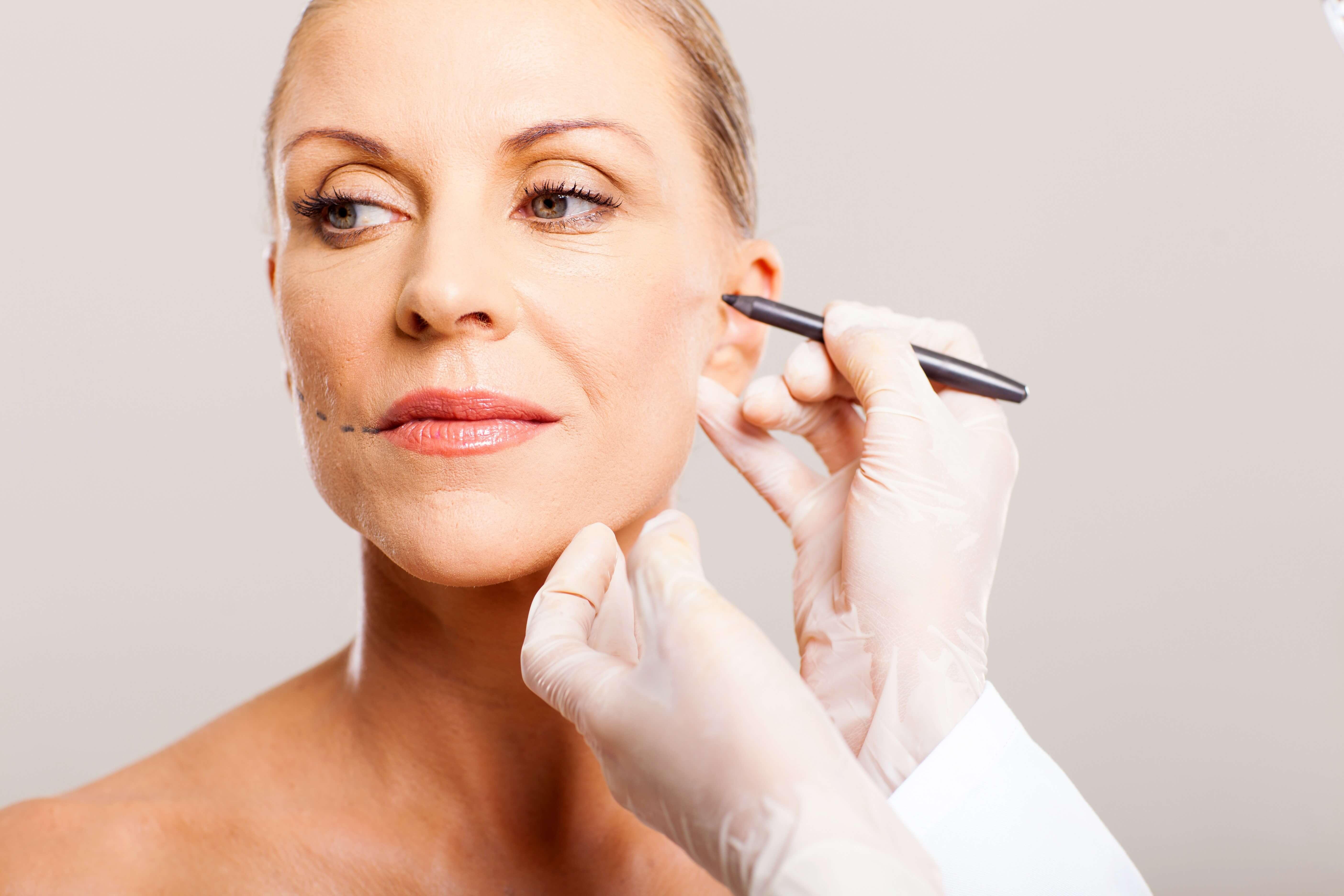 Tratamiento Facial con Hilos Tensores