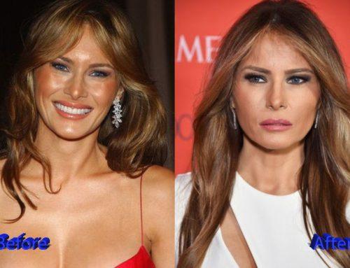 Melania Trump, ¿una modelo Estéticamente perfecta?