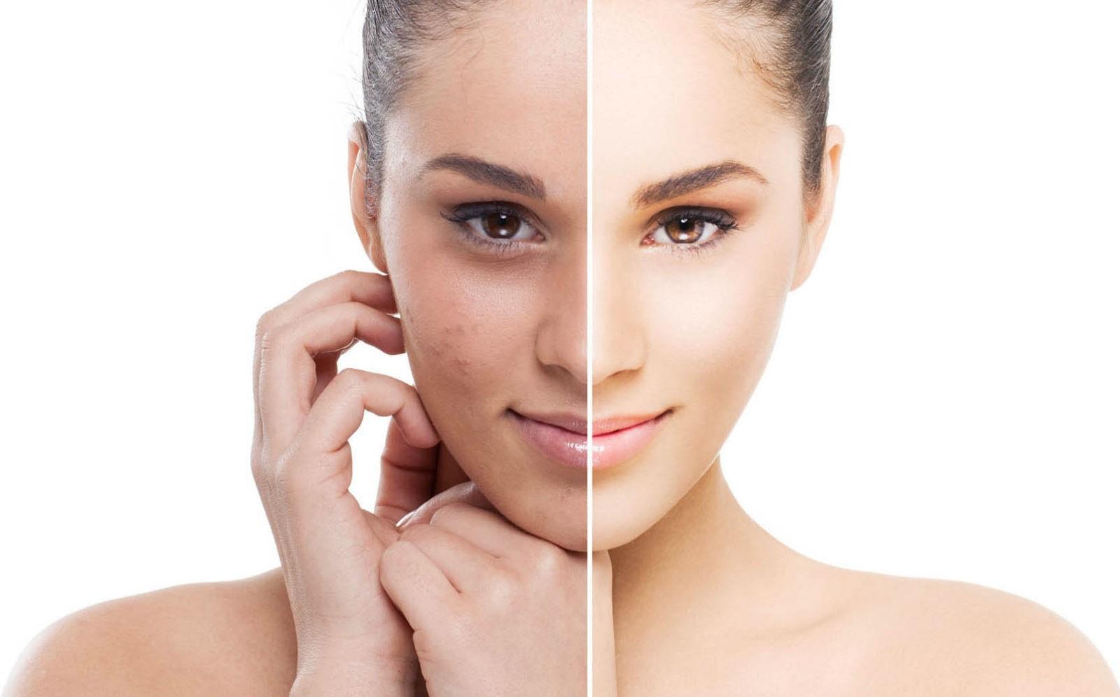 El Peeling Químico sirve para rejuvenecer la piel.