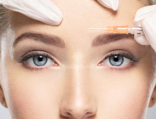 Baby botox para prevenir arrugas de expresión